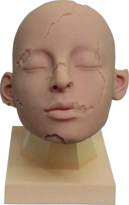 Weiblicher Kopf mit Verletzungen